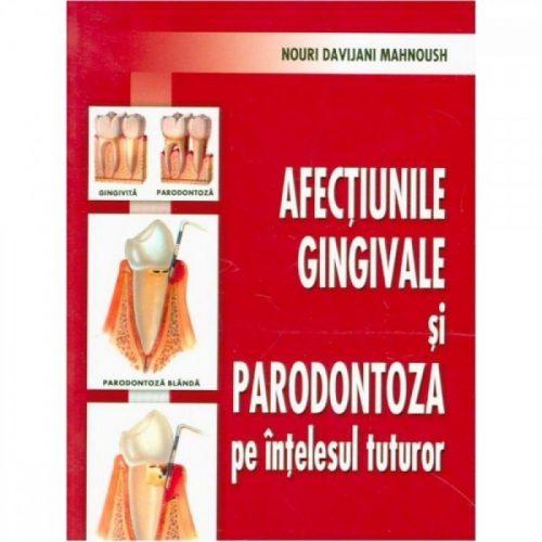 Afectiunile gingivale si paradontoza pe intelesul tuturor (ed. tiparita)